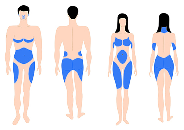 Estrogen-Fat-Areas